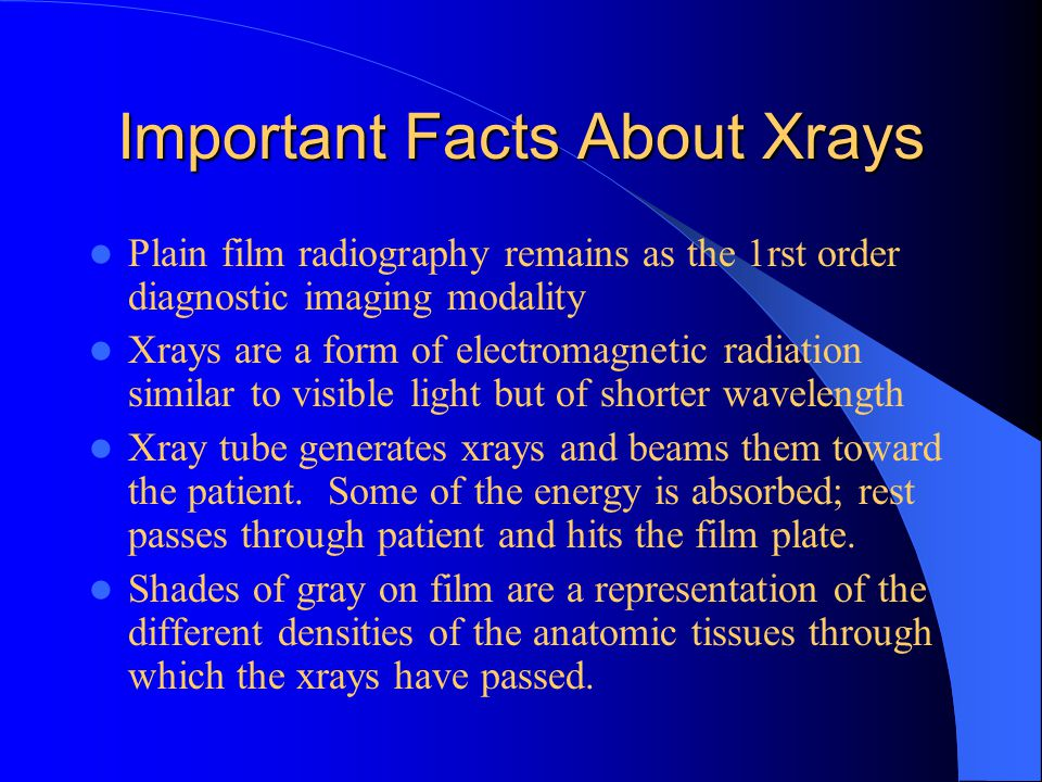 Important Facts About Xrays