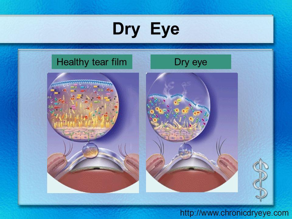 download bilanzmodelle in der grundwasserhydraulik