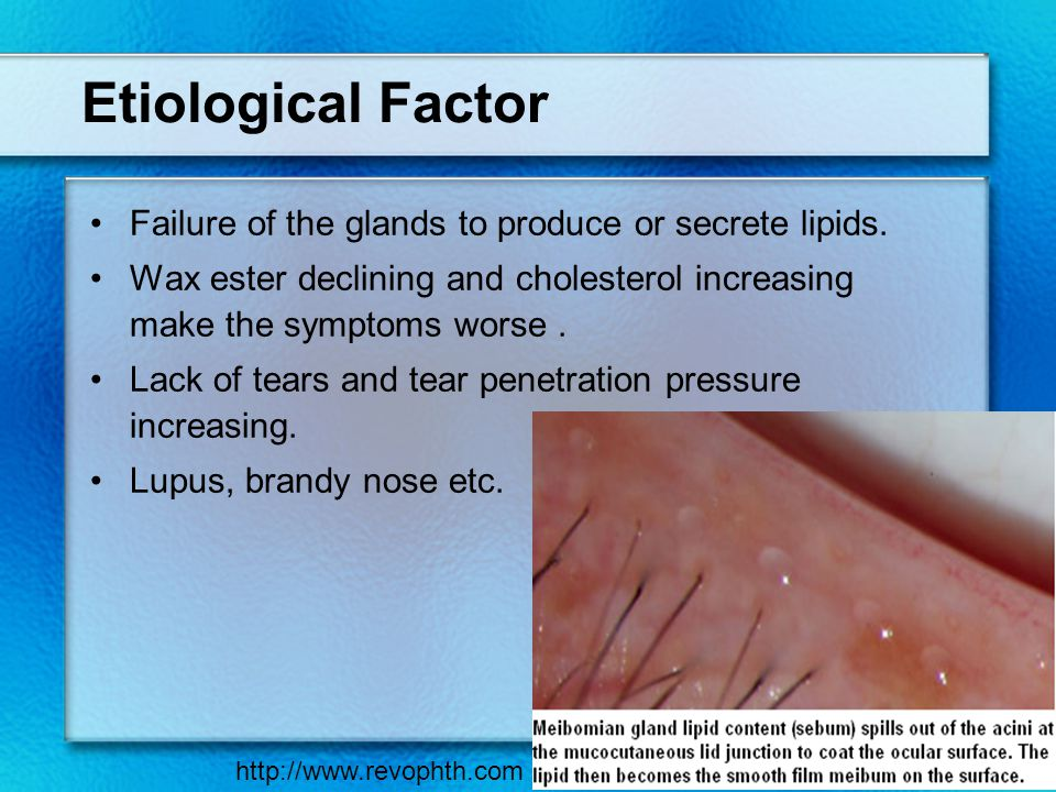 Etiological Factor Failure of the glands to produce or secrete lipids.
