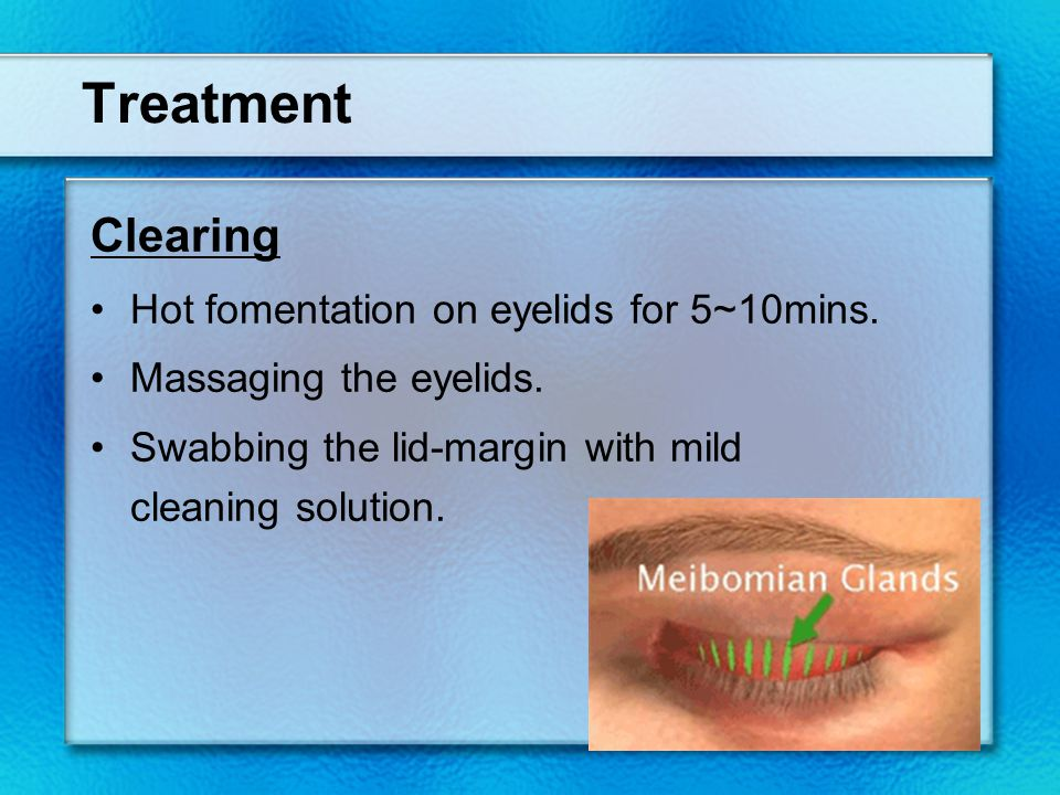 Treatment Clearing Hot fomentation on eyelids for 5~10mins.