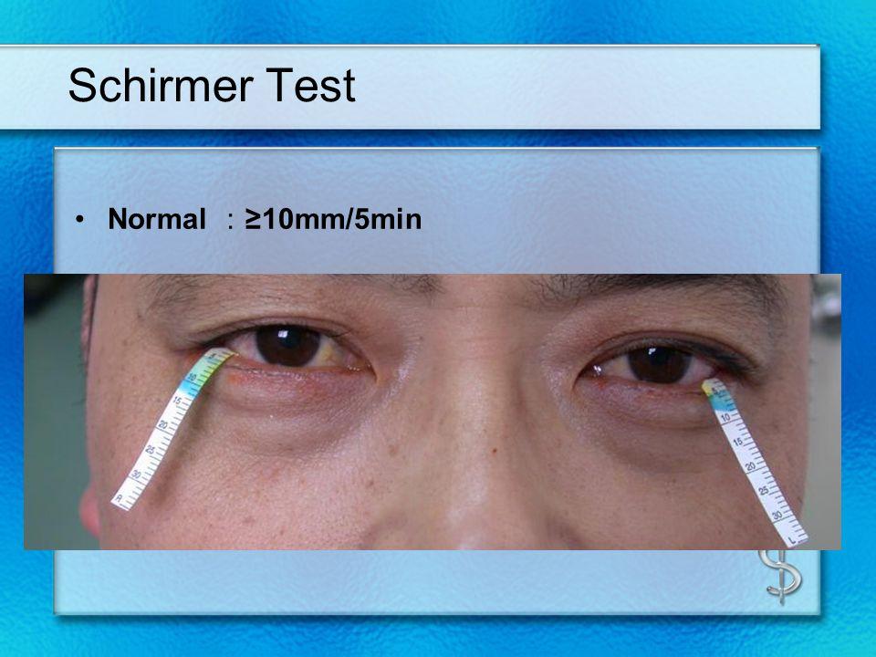 Schirmer Test Normal :≥10mm/5min