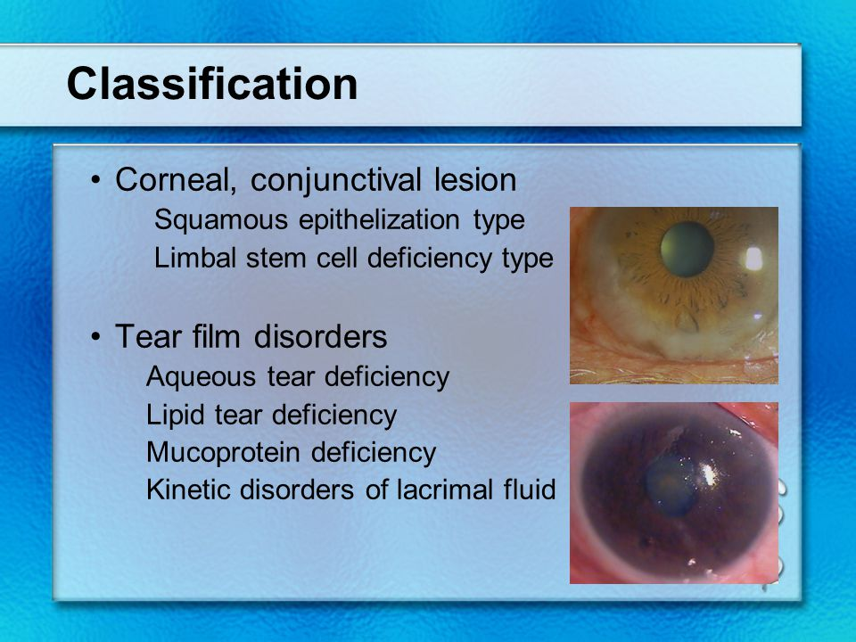 Classification Corneal, conjunctival lesion Tear film disorders