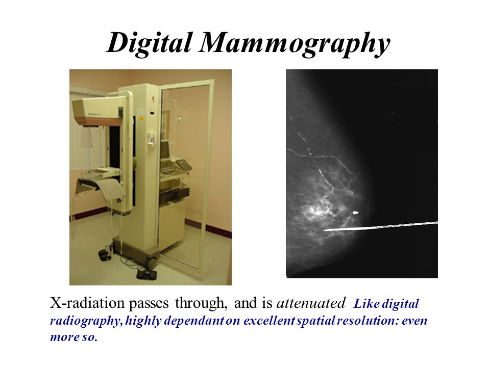 Digital Mammography X-radiation passes through, and is attenuated Like digital radiography, highly dependant on excellent spatial resolution: even.
