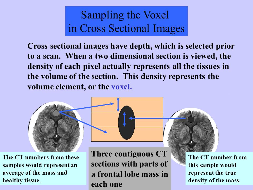 in Cross Sectional Images