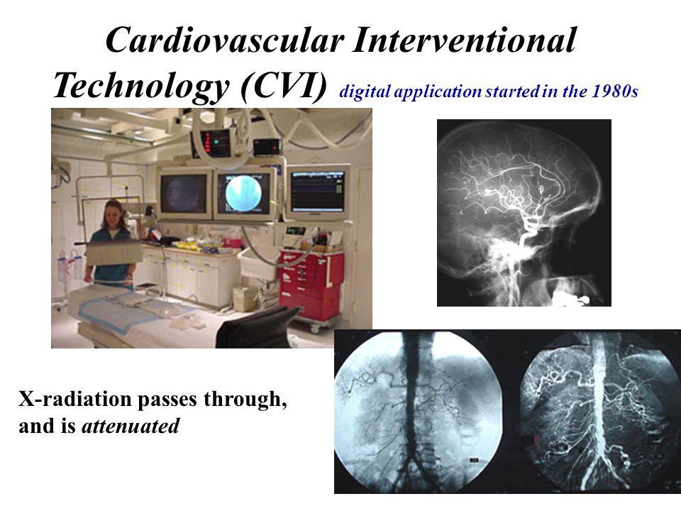 Cardiovascular Interventional