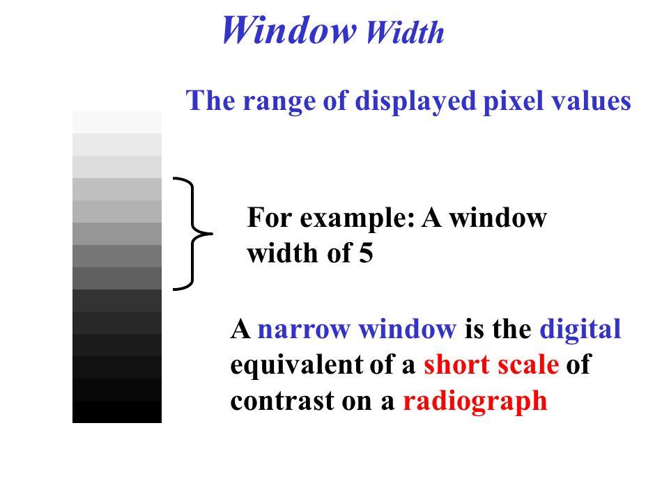 Window Width The range of displayed pixel values