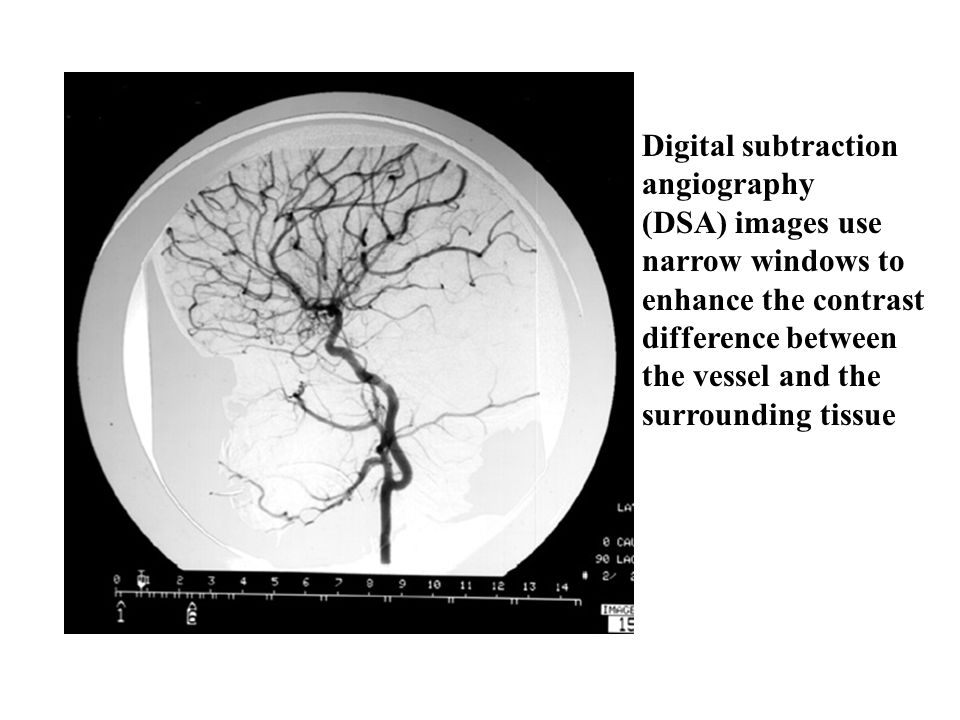 Digital subtraction angiography. (DSA) images use. narrow windows to. enhance the contrast. difference between.