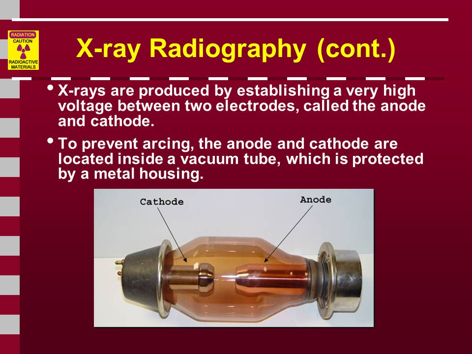 X-ray Radiography (cont.)