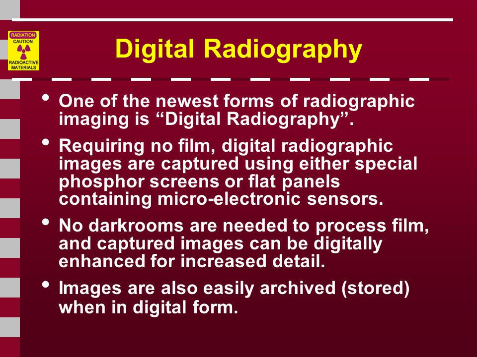 Digital Radiography One of the newest forms of radiographic imaging is Digital Radiography .