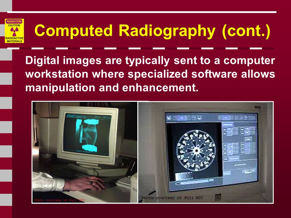 Computed Radiography (cont.)