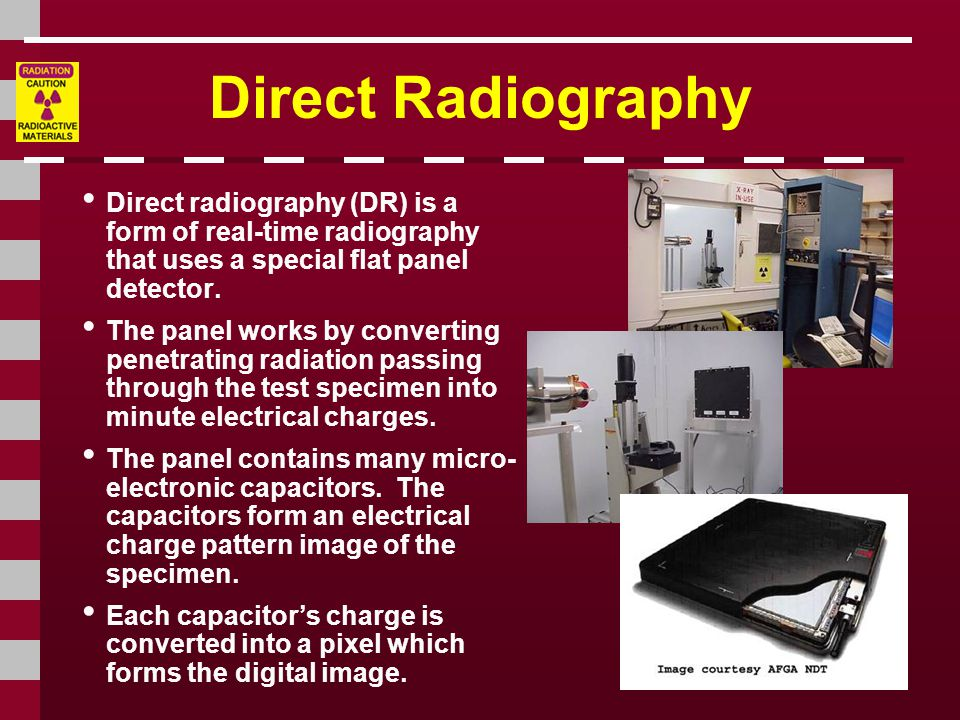 Direct Radiography Direct radiography (DR) is a form of real-time radiography that uses a special flat panel detector.