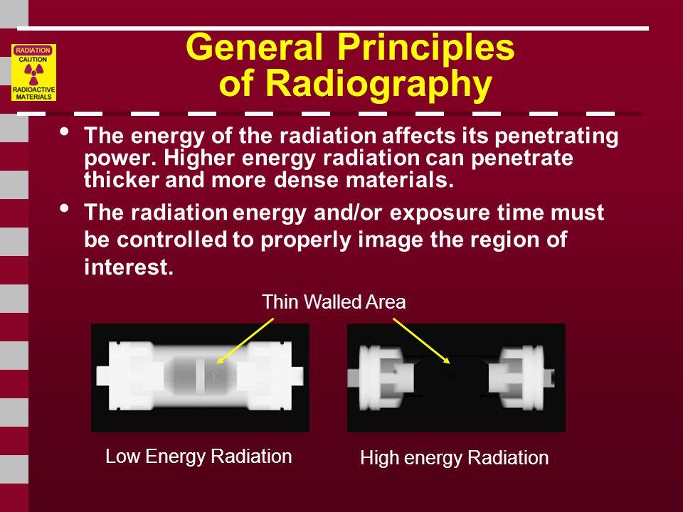 General Principles of Radiography