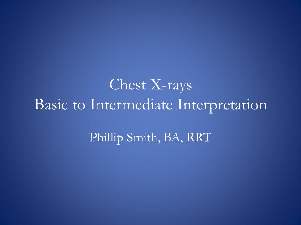 Chest X-rays Basic to Intermediate Interpretation