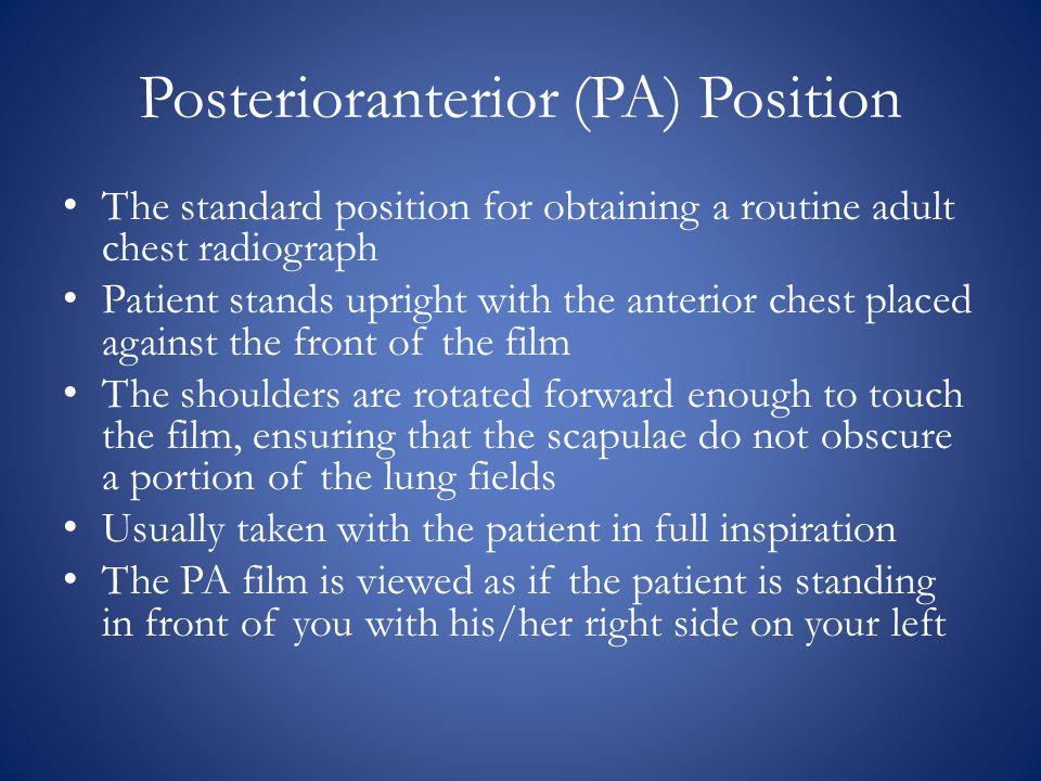 Posterioranterior (PA) Position