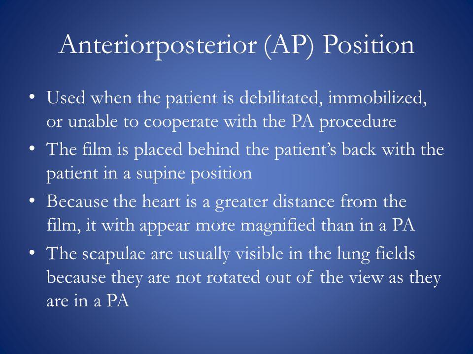 Anteriorposterior (AP) Position