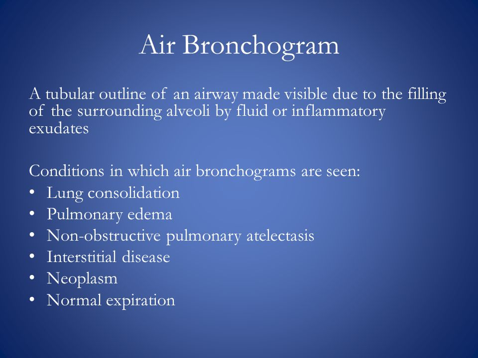Air Bronchogram A tubular outline of an airway made visible due to the filling of the surrounding alveoli by fluid or inflammatory exudates.