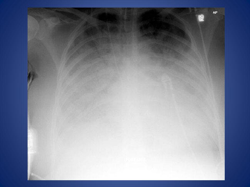 This patient has bilateral lower lobe pulmonary edema