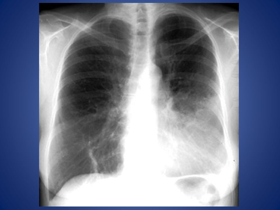 Consolidation / Lingula Density in left lower lung field
