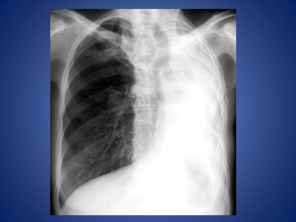 Atelectasis Left Lung Homogenous density left hemithorax. Mediastinal shift to left. Left hemithorax smaller.