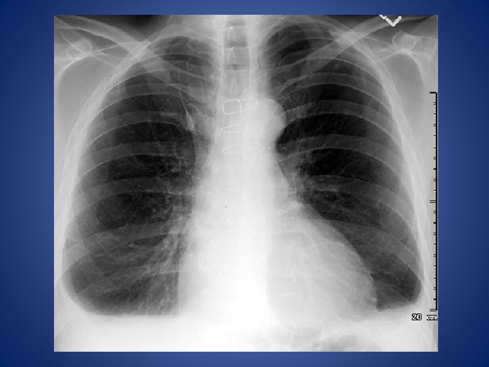 A patient with bilateral pleural effusions