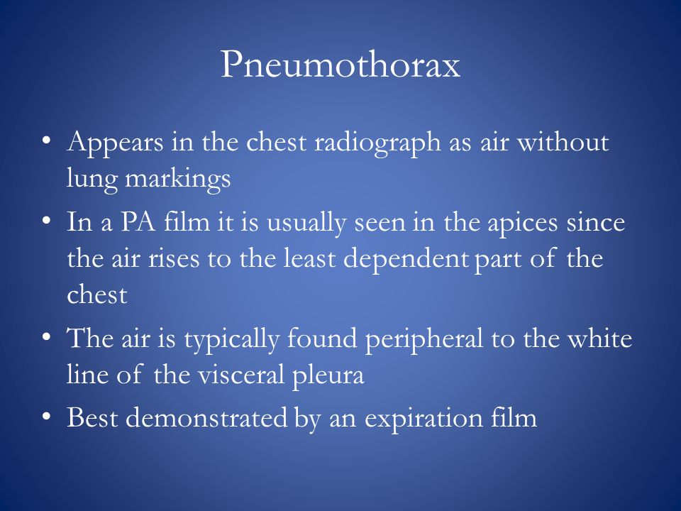Pneumothorax Appears in the chest radiograph as air without lung markings.