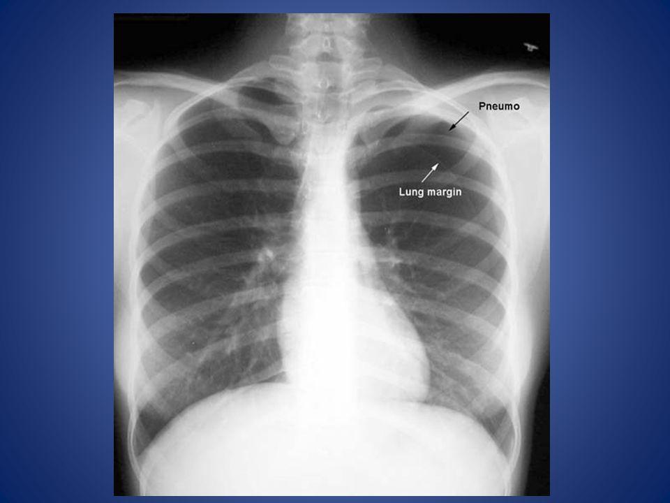 Air in pleural space Lung margin