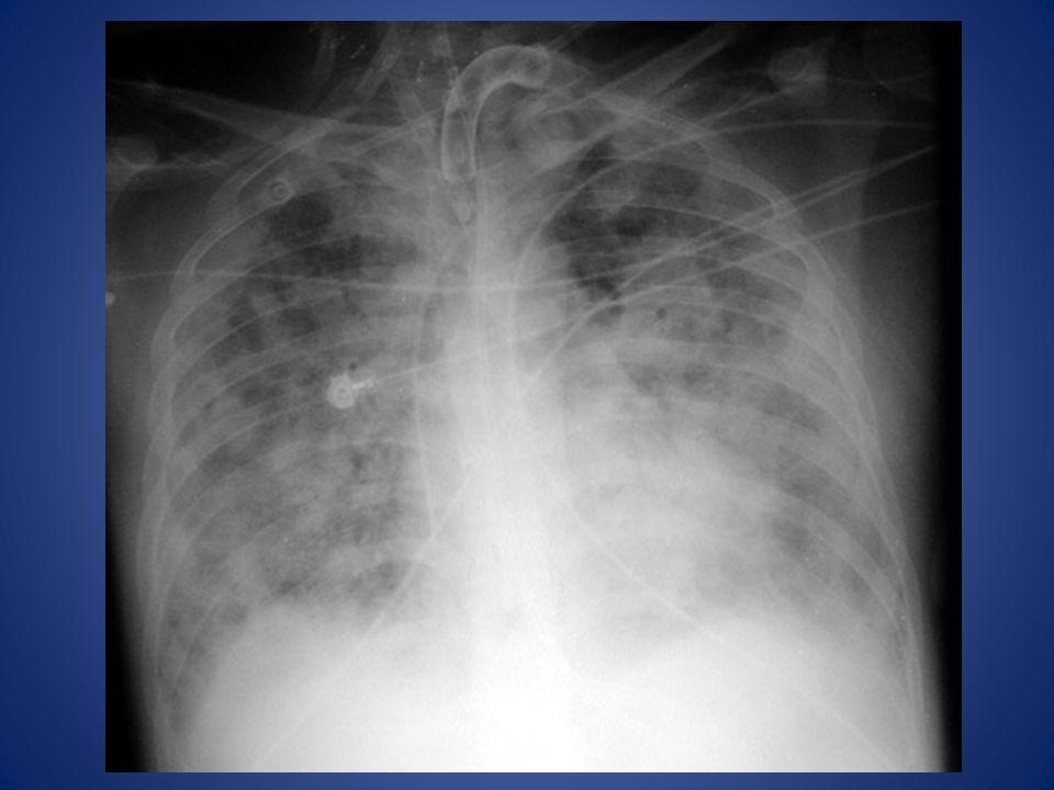 ARDS Non-cardiogenic pulmonary edema. Distinguishing characteristics: Normal size heart.