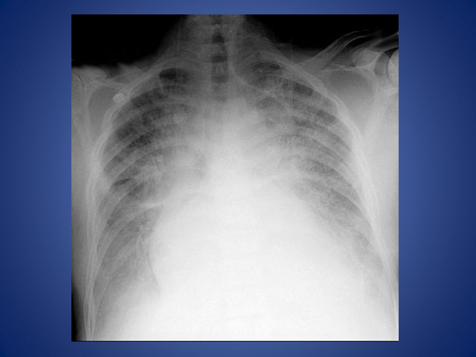 This is a typical chest x-ray of a patient in severe CHF