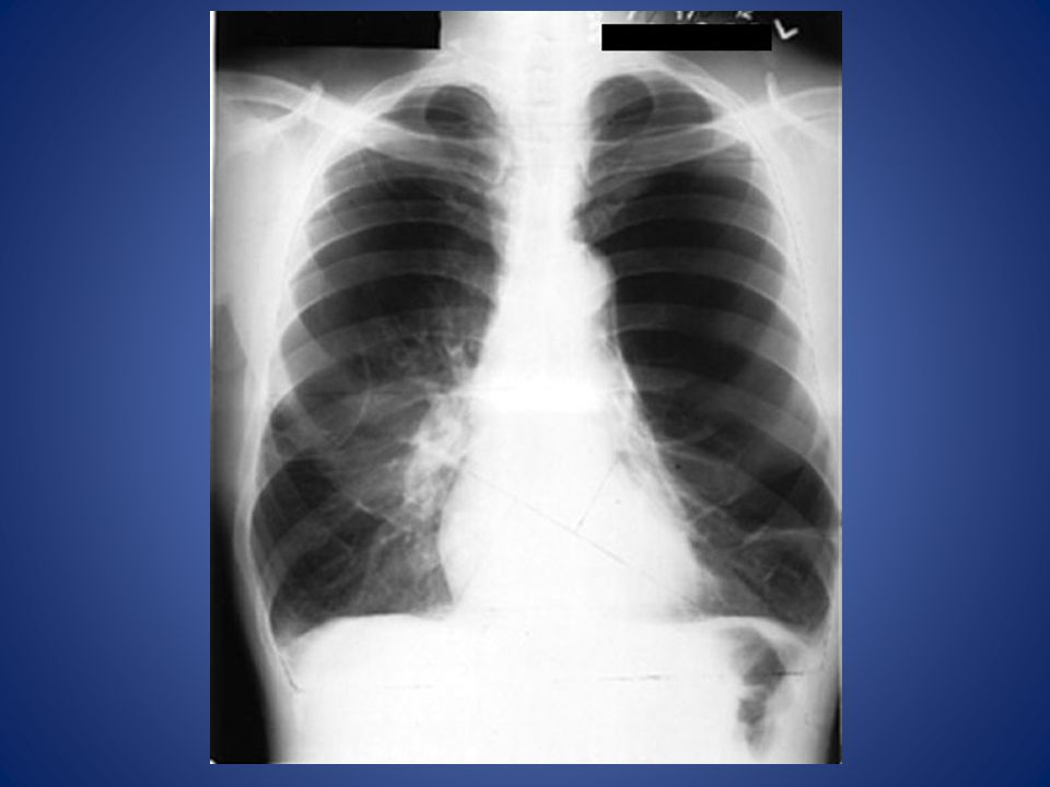 Hyperlucent lung fields