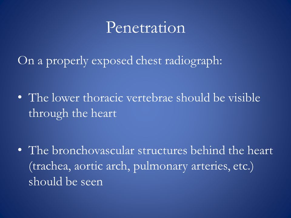Penetration On a properly exposed chest radiograph: