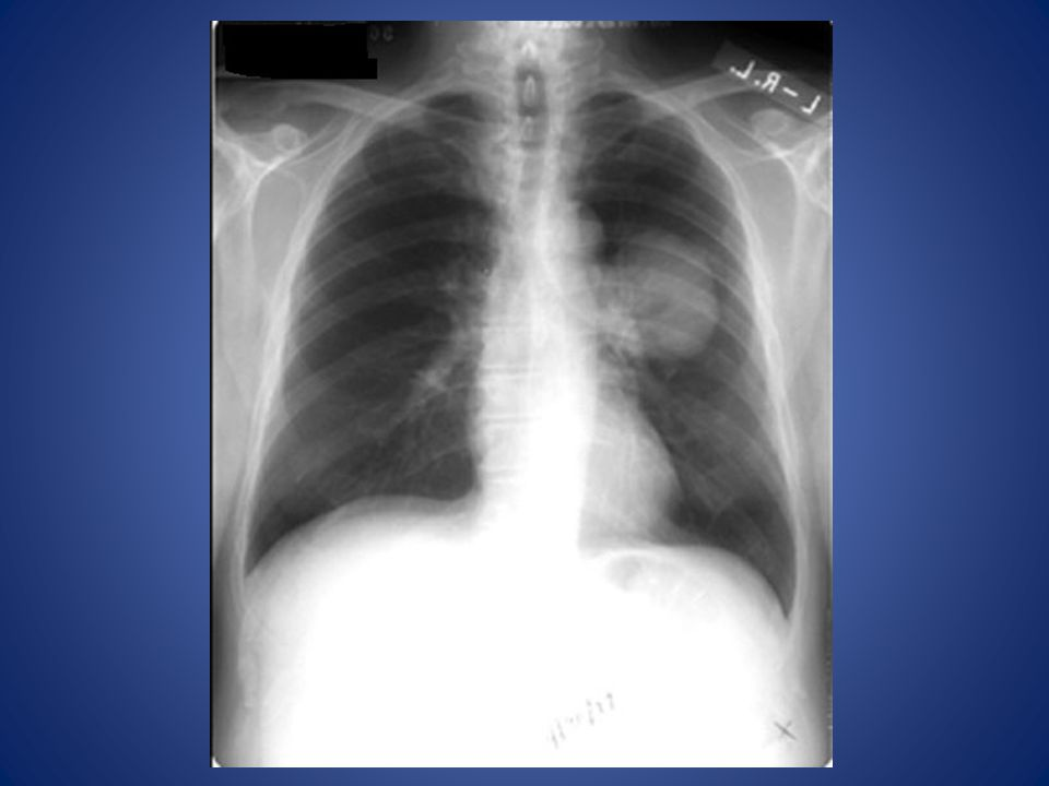 Lung mass Round or oval Sharp margin Homogenous No respect for anatomy