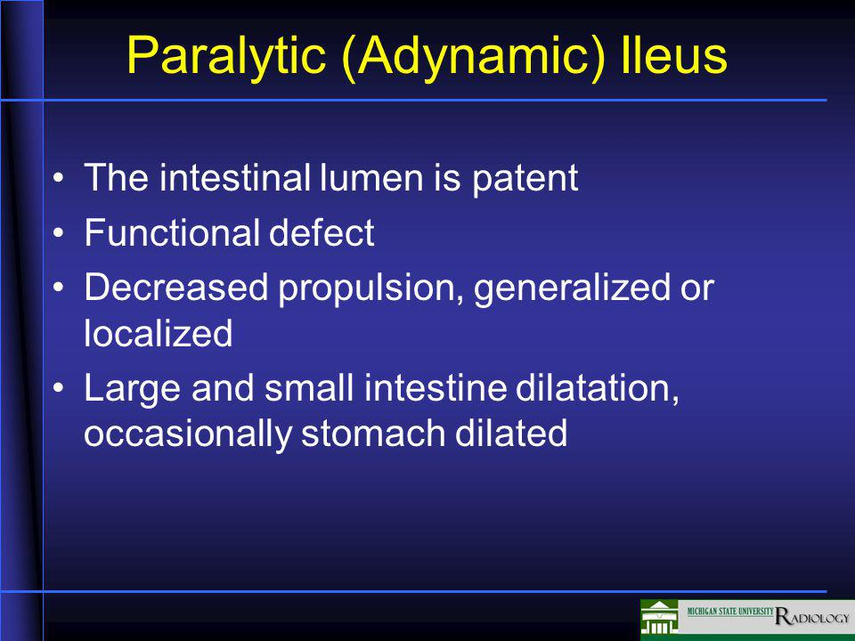 Paralytic (Adynamic) Ileus