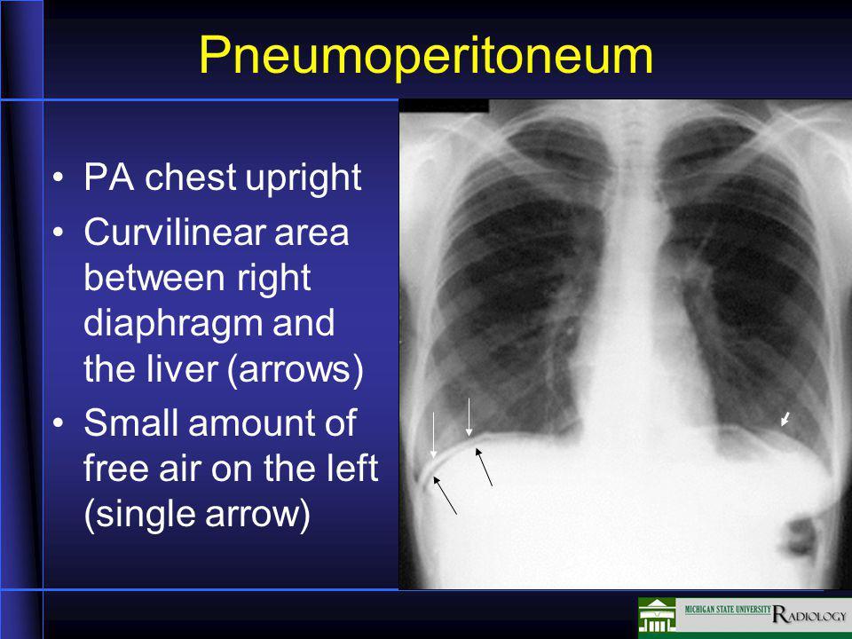 Pneumoperitoneum PA chest upright