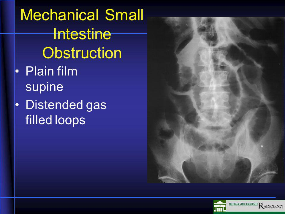 Mechanical Small Intestine Obstruction