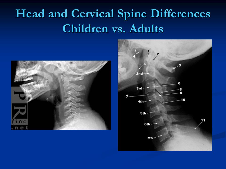 Head and Cervical Spine Differences Children vs. Adults