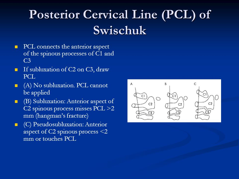 Posterior Cervical Line (PCL) of Swischuk