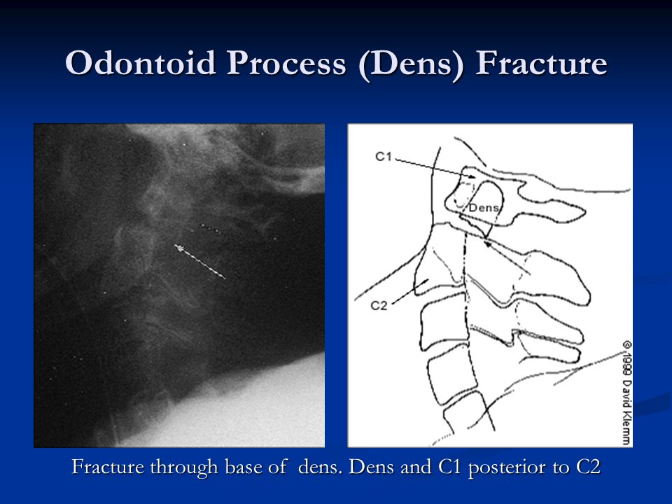Odontoid Process (Dens) Fracture