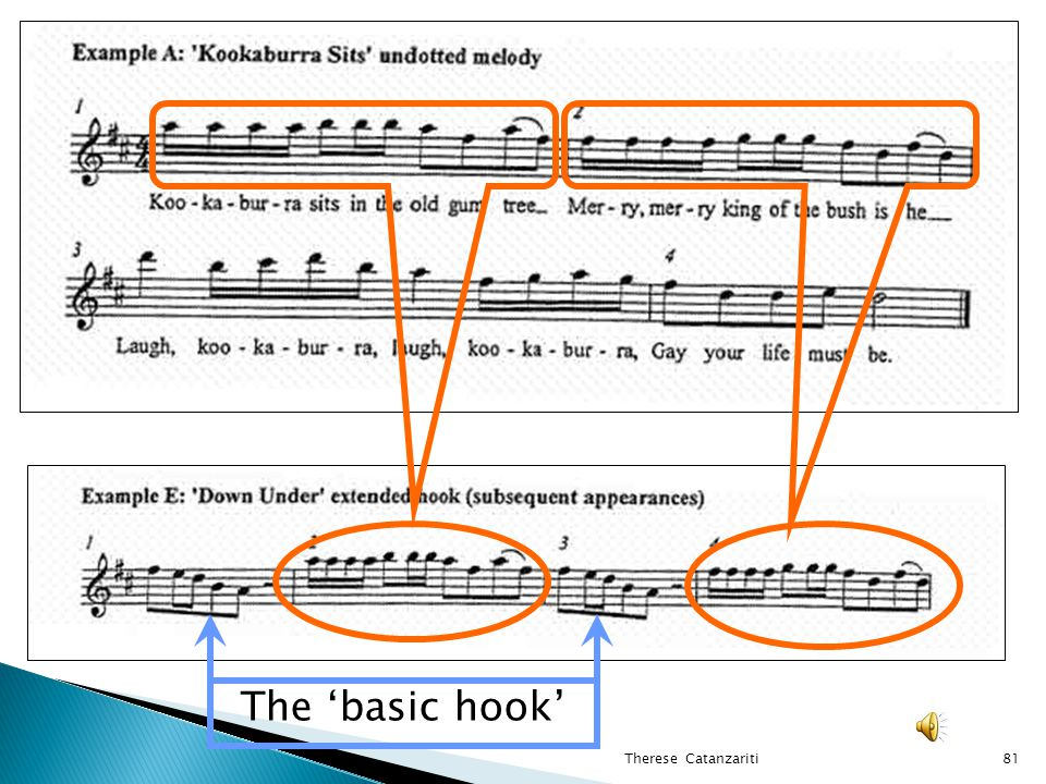 The 'basic hook' Therese Catanzariti