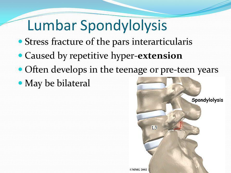 Lumbar Spondylolysis Stress fracture of the pars interarticularis