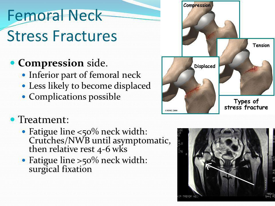 Femoral Neck Stress Fractures
