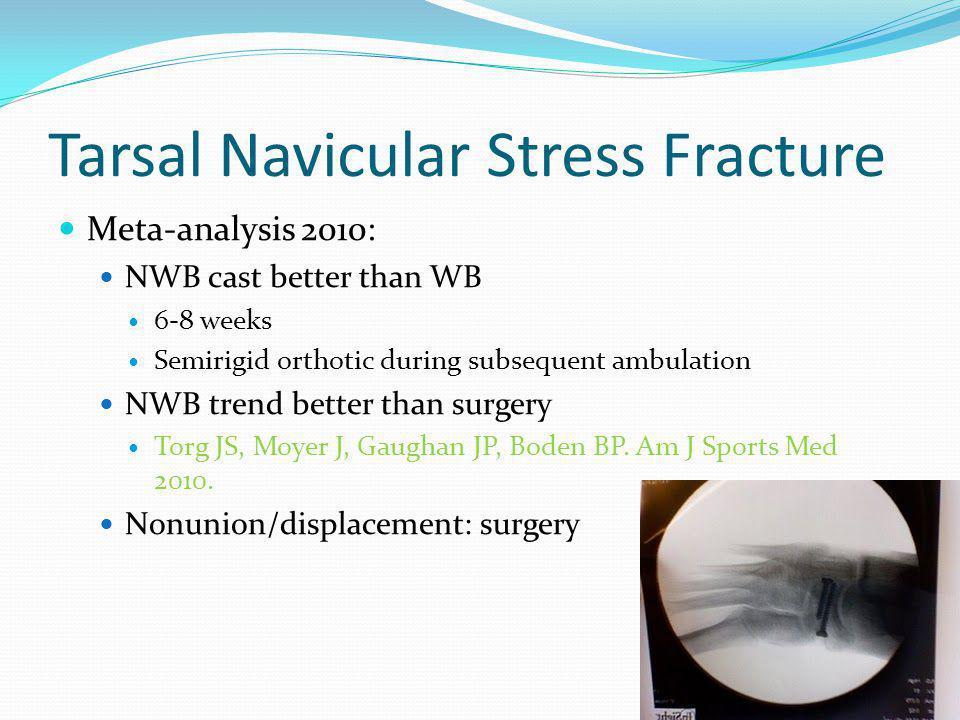 Tarsal Navicular Stress Fracture