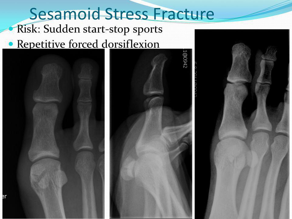 Sesamoid Stress Fracture