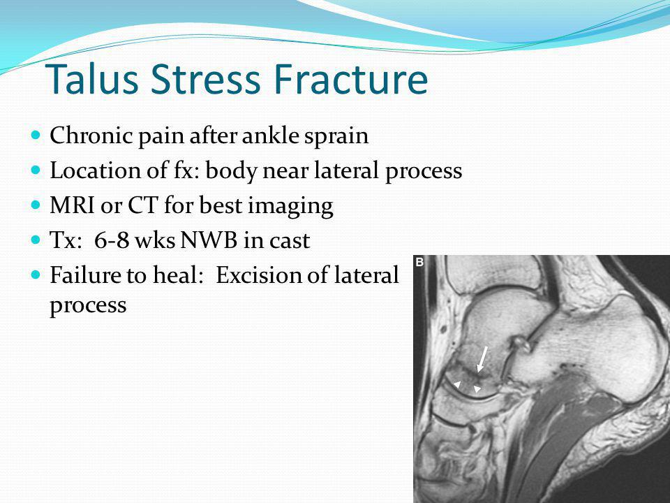 Talus Stress Fracture Chronic pain after ankle sprain