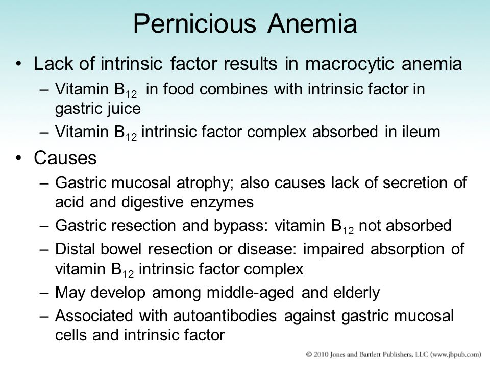 Pernicious Anemia Lack of intrinsic factor results in macrocytic anemia. Vitamin B12 in food combines with intrinsic factor in gastric juice.