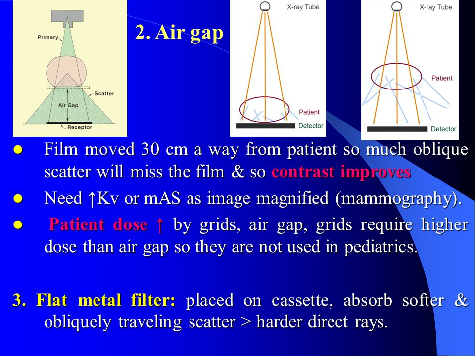 2. Air gap Film moved 30 cm a way from patient so much oblique scatter will miss the film & so contrast improves.
