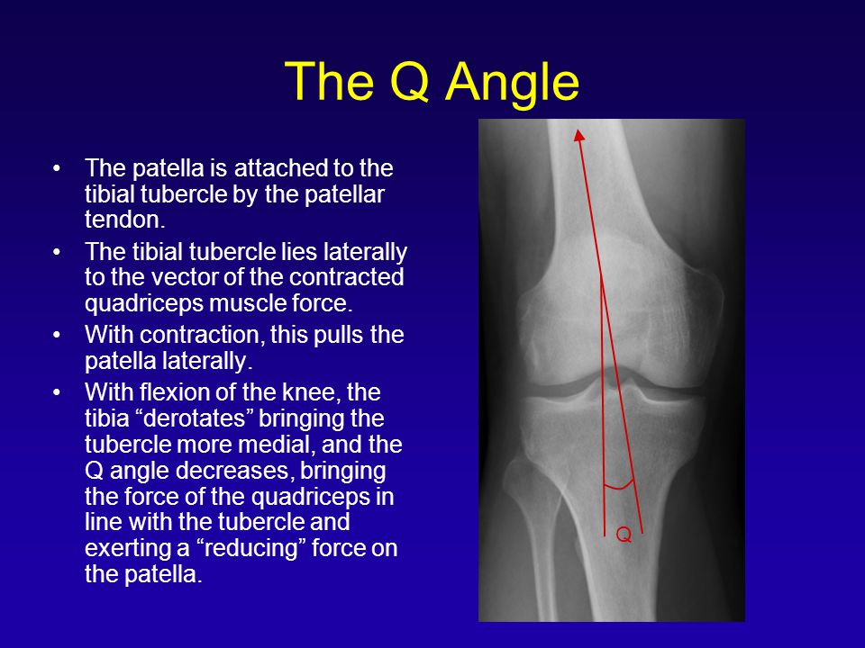 The Q Angle Q. The patella is attached to the tibial tubercle by the patellar tendon.