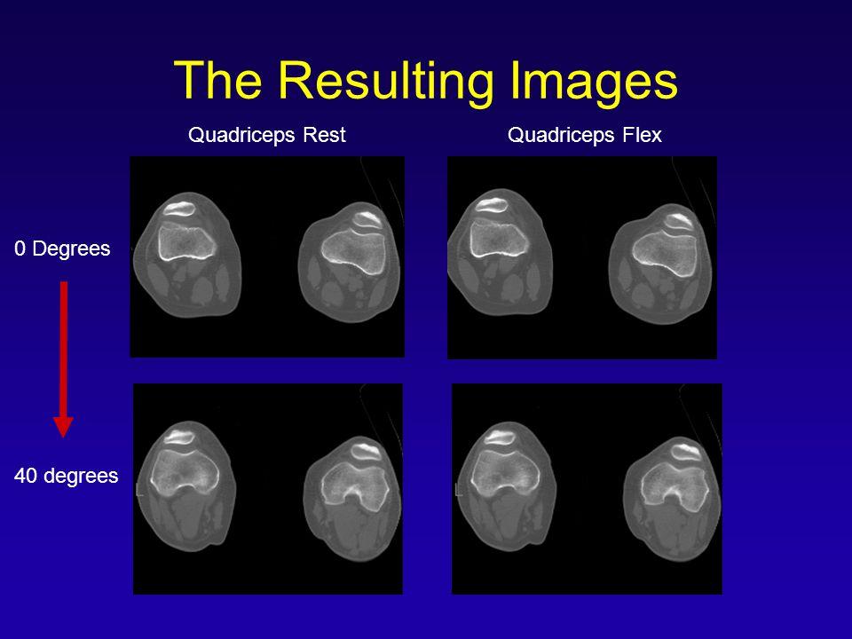 The Resulting Images Quadriceps Rest Quadriceps Flex 0 Degrees