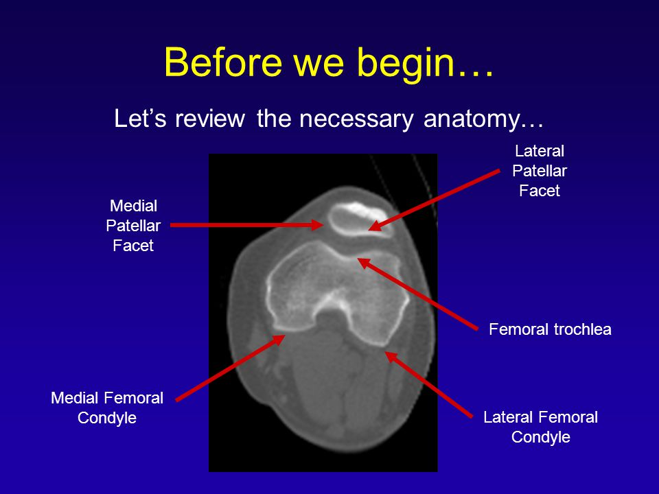 Let's review the necessary anatomy…
