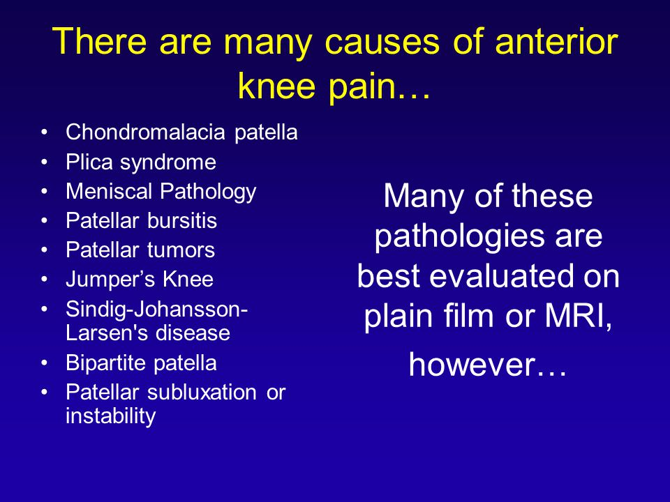 There are many causes of anterior knee pain…