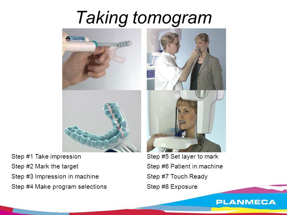 Taking tomogram Step #1 Take impression Step #2 Mark the target